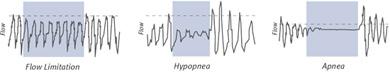 Gráficos de apnea del sueno, hipopnea y limitación de flujo de Fisher and Paykel Icon+ Auto